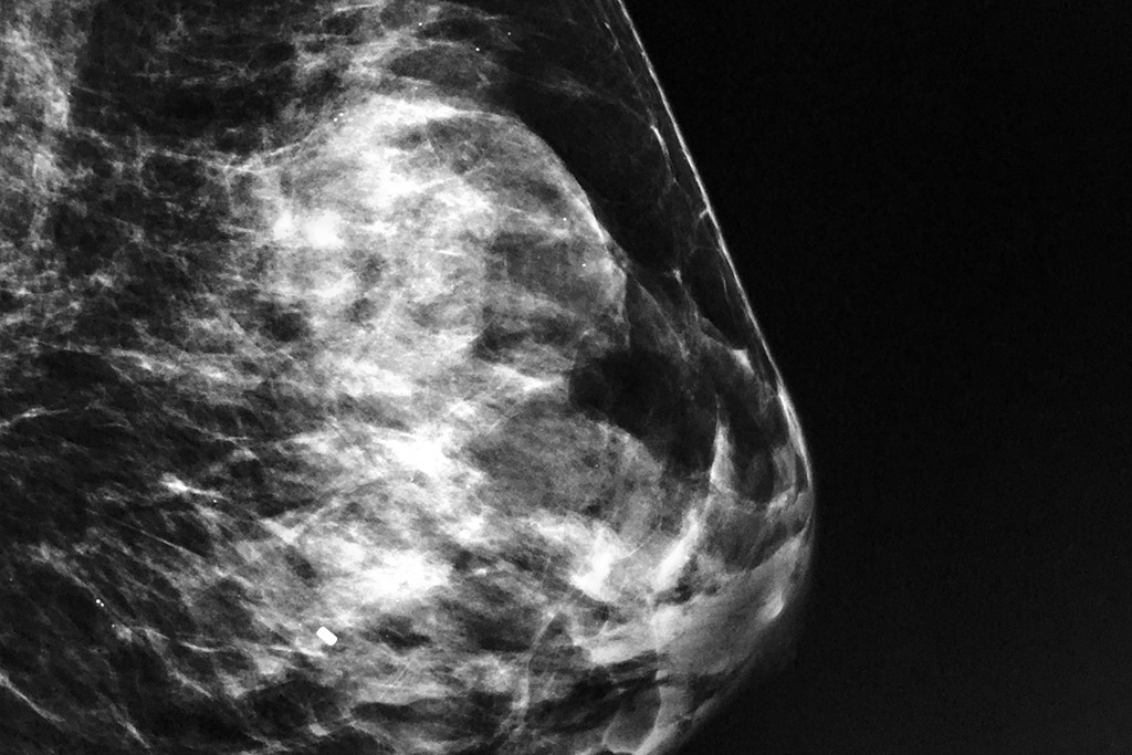 Mammogram And Ultrasound Images Explained The Women S
